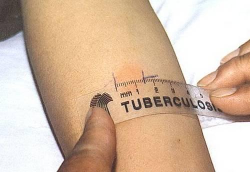 Туберкулез в детском саду