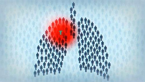 Пикет против ликвидации 3 отделения противотуберкулёзного диспансера прошёл у ЦРБ в Коломне